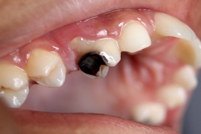Ce se intampla daca nu tratez / extrag un dinte cariat? Pot sa indepartez sau sa opresc caria acasa prin periaj / igienizare mai riguroasa?