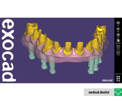 EXOCAD, Soft Design Dentar Virtual